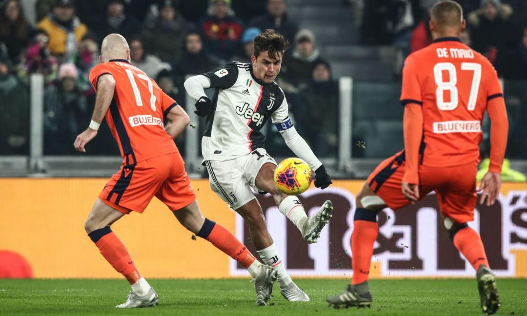 La Juve celebra l'azione Dybala-Higuain: 'A noi sembra arte' FOTO